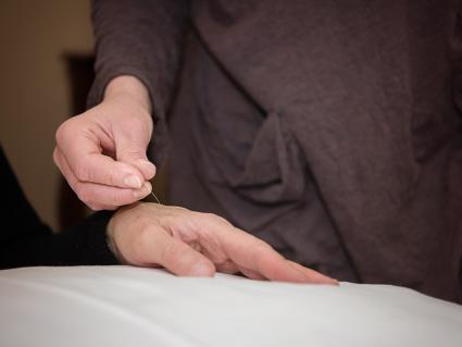 Acupuncturephotoresized